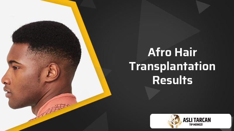 Afro Hair Transplantation Results