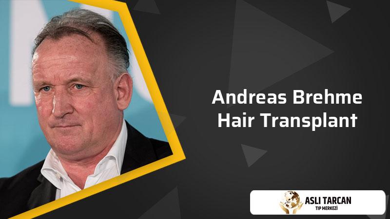 Andreas Brehme Hair Transplant