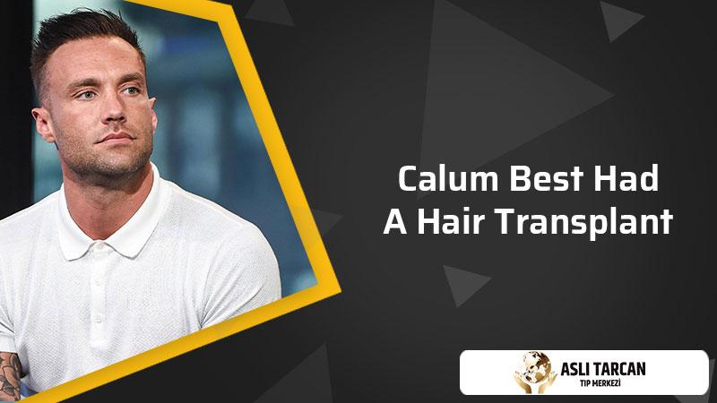 Calum Best had a hair transplant