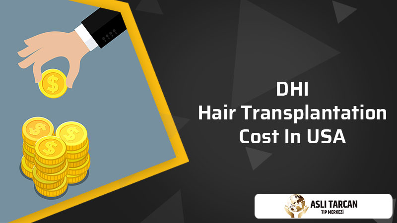 DHI Hair Transplantation Cost In USA