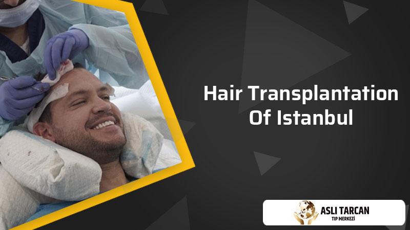 Hair Transplantation Of Istanbul