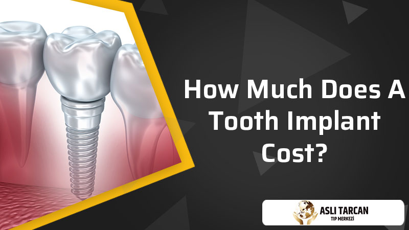 How Much Does A Tooth Implant Cost?