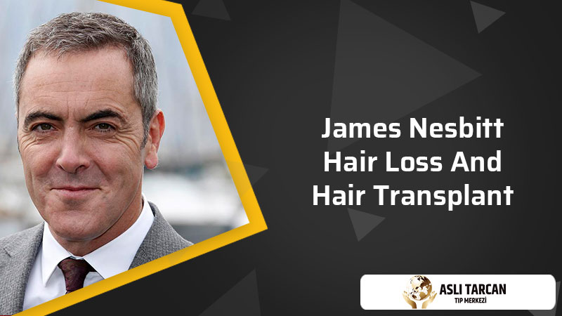 James Nesbitt Hair Loss And Hair Transplant