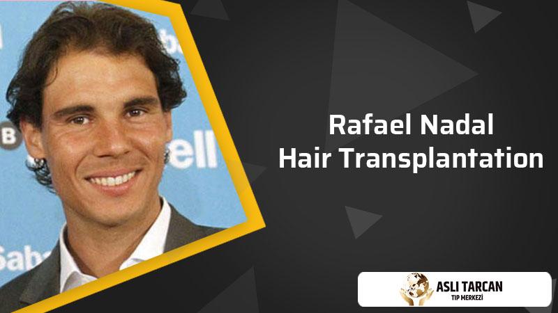 Rafael Nadal Hair Transplantation
