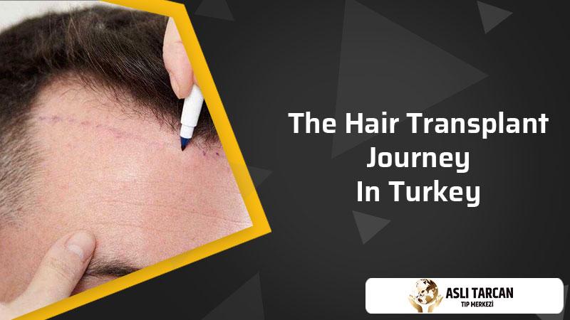 The Hair Transplant Journey In Turkey