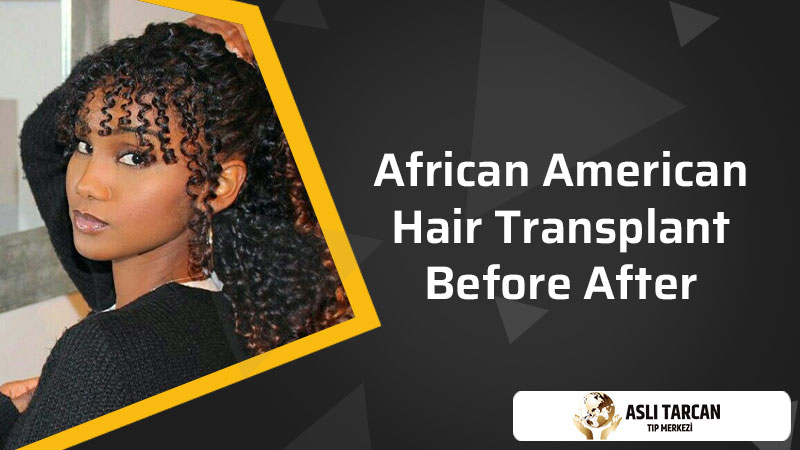 African American Hair Transplant Before After