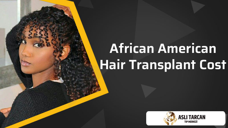African- American Hair Transplant Cost