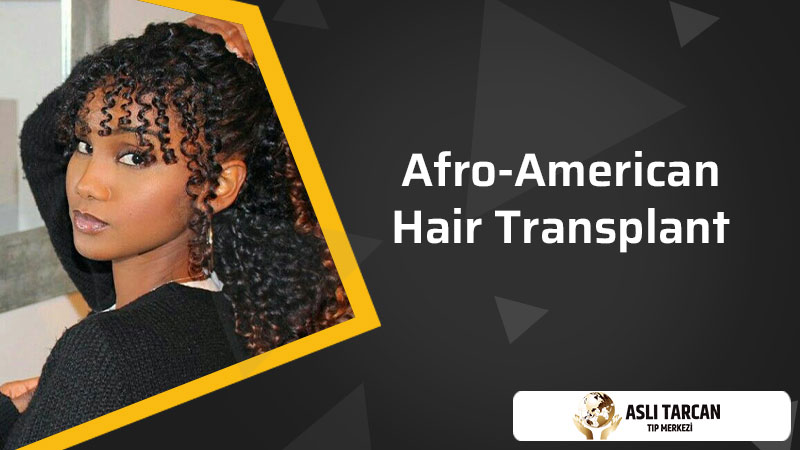 Afro-American Hair Transplant