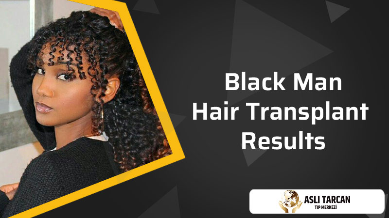 Afro Hair Replacement Systems