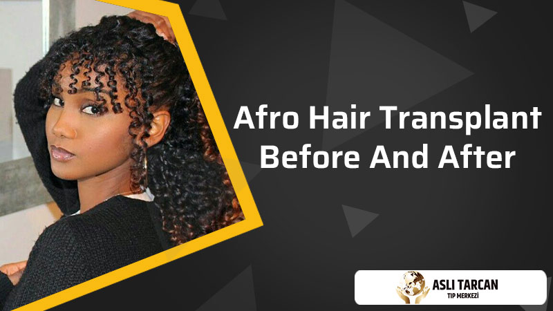 Afro Hair Transplant Before And After