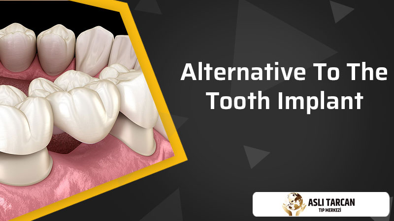 Alternative To The Tooth Implant