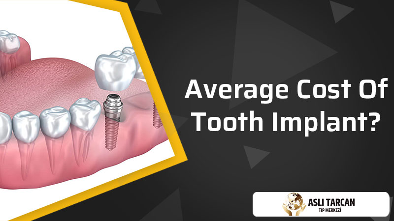 Average Cost Of Tooth Implant