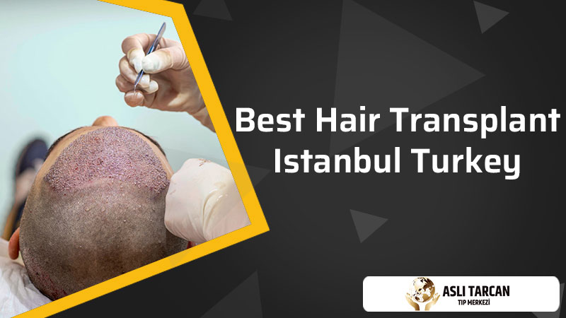 Best Hair Transplant Istanbul Turkey