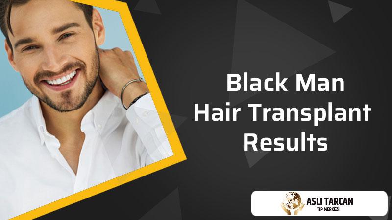 Black Man Hair Transplant Results