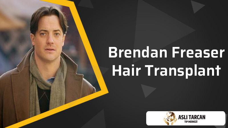 Brendan Freaser Hair Transplant