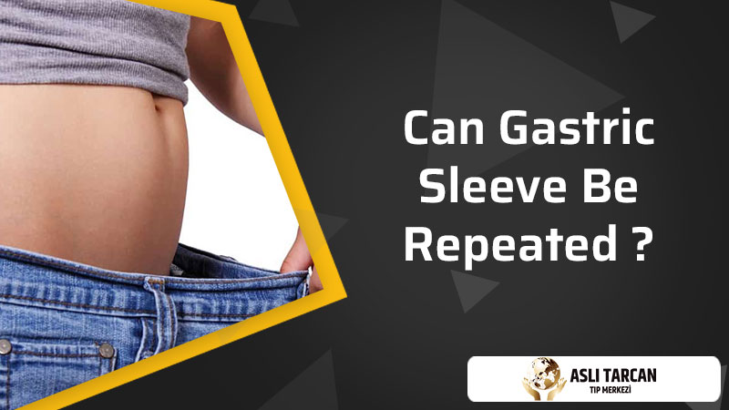 Can Gastric Sleeve Be Repeated