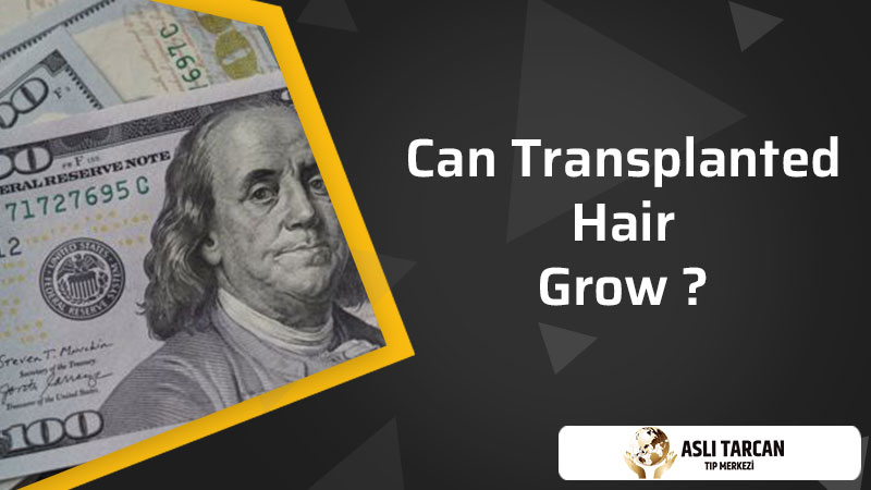 Can Transplanted Hair Grow
