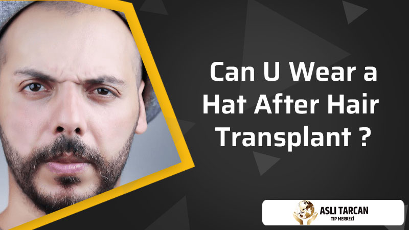 Can U Wear a Hat After Hair Transplant