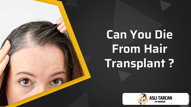 Can You Die From Hair Transplant