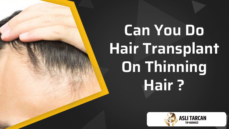 Can You Do Hair Transplant On Thinning Hair