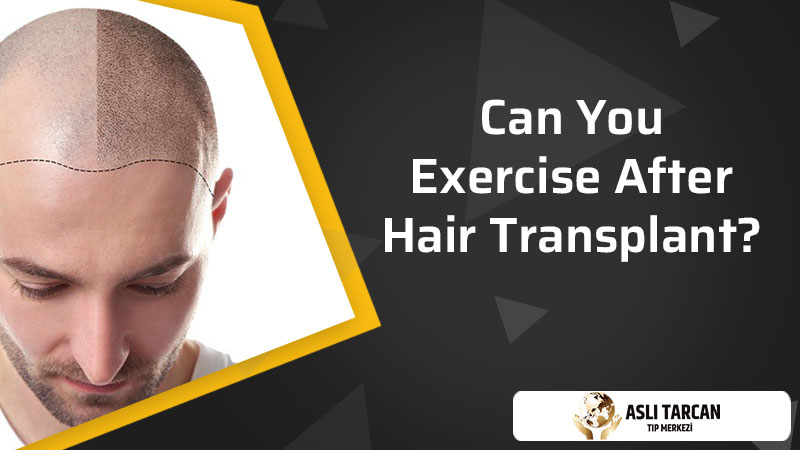 Can You Exercise After Hair Transplant?
