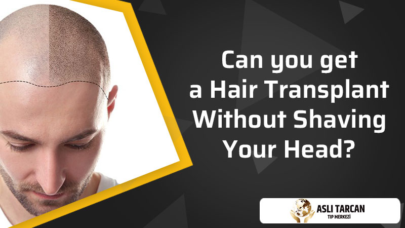 Can you get a hair transplant without shaving