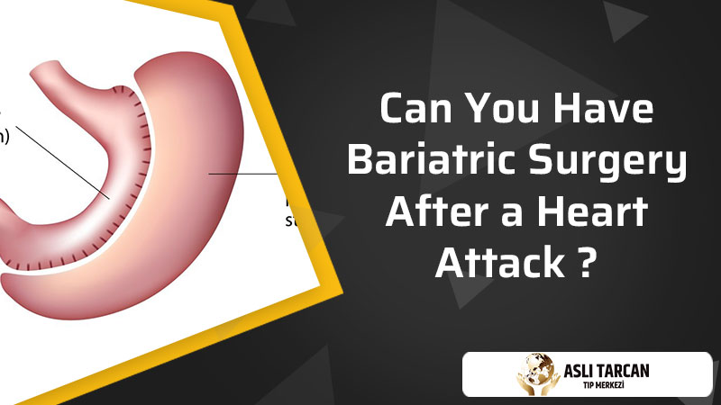 Can You Have Bariatric Surgery After a Heart Attack