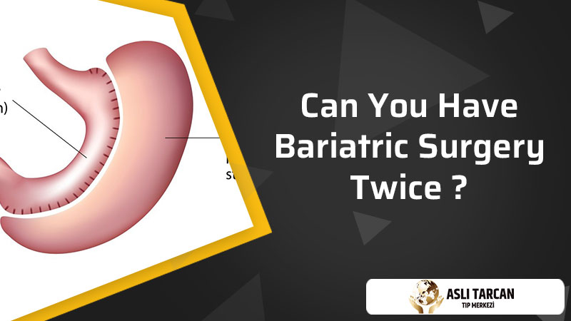 Can You Have Bariatric Surgery Twice