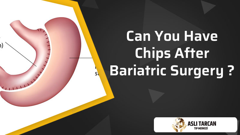 Can You Have Chips After Bariatric Surgery