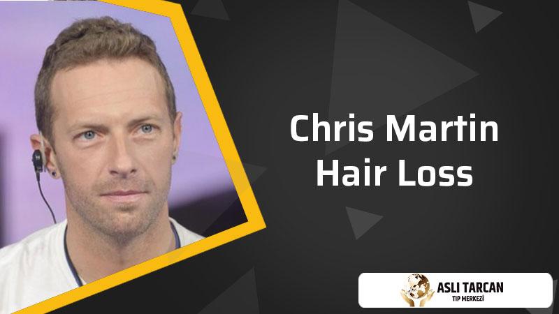 Chris Martin Hair Loss
