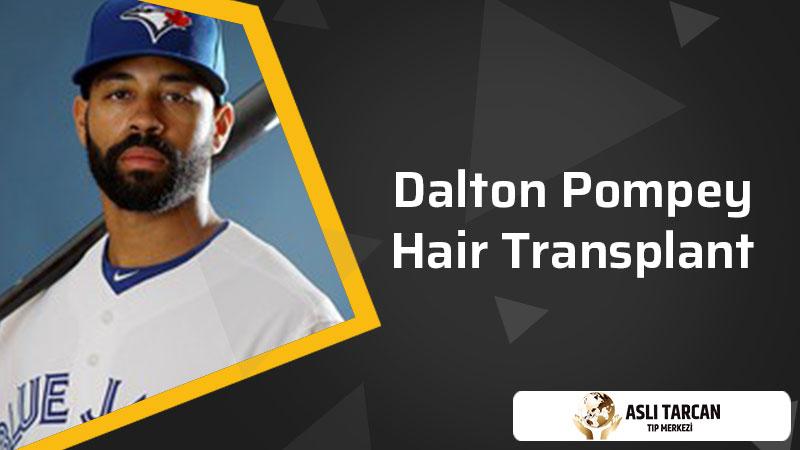 Dalton Pompey Hair Transplant