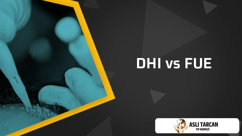 DHI vs FUE