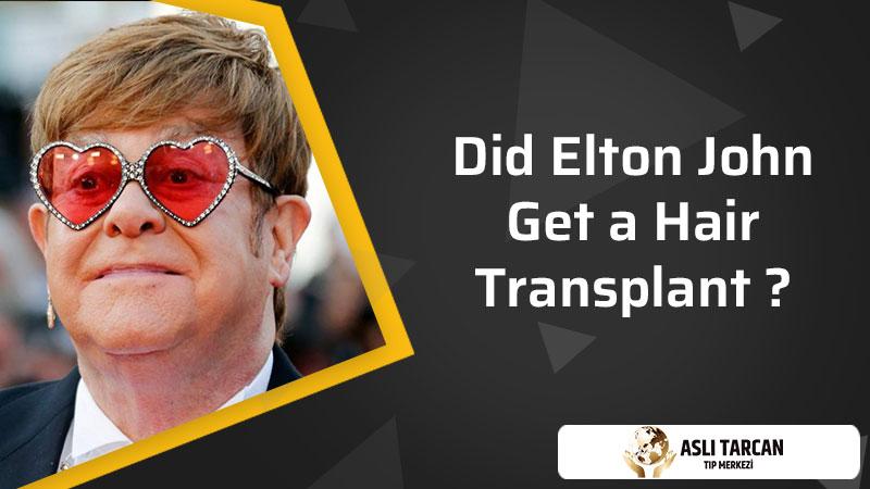 Did Elton John Get a Hair Transplant