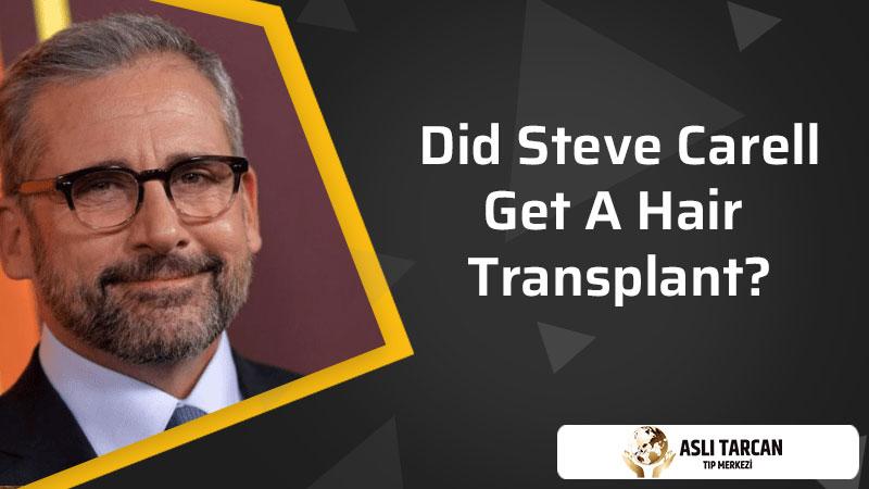 Did Steve Carell Get A Hair Transplant?