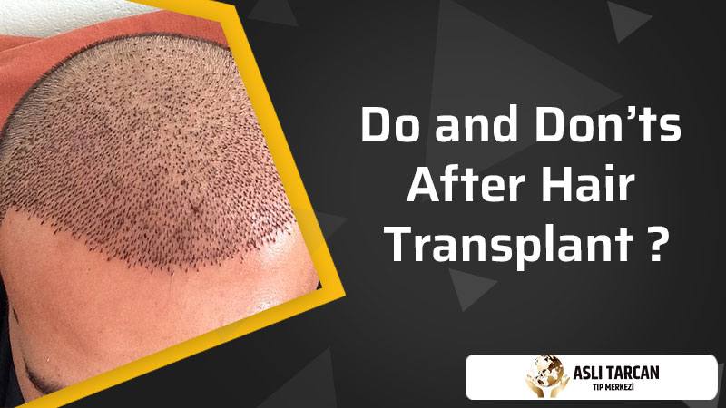 Do and Don'ts After Hair Transplant