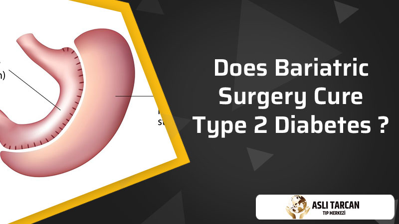 Does Bariatric Surgery Cure Type 2 Diabetes