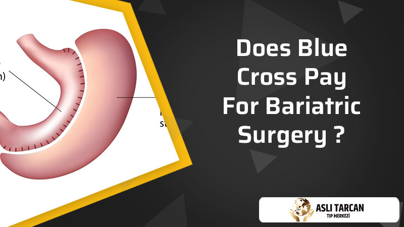 Does Blue Cross Pay For Bariatric Surgery