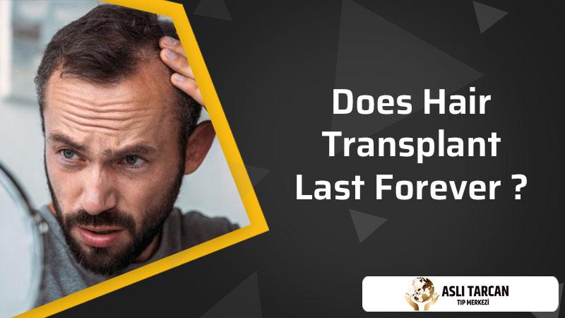 Does Hair Transplant Last Forever ?