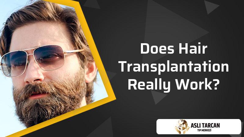 Does Hair Transplantation Really Work?
