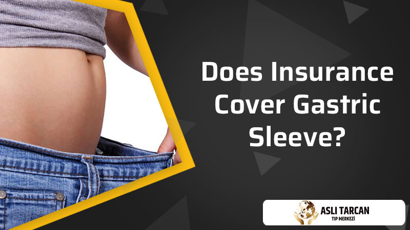 Does Insurance Cover Gastric Sleeve?