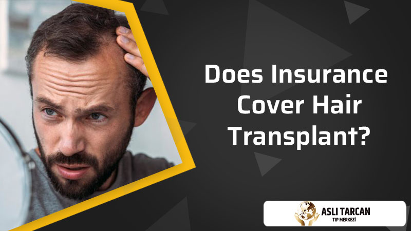 Does Insurance Cover Hair Transplant