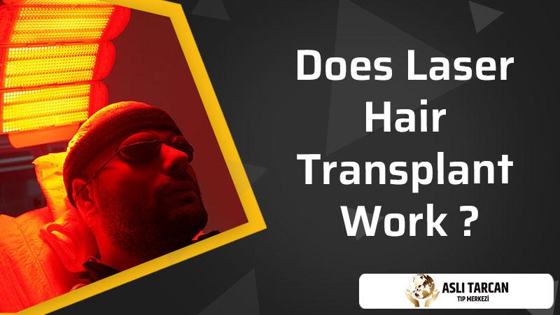 Does Laser Hair Transplant Work