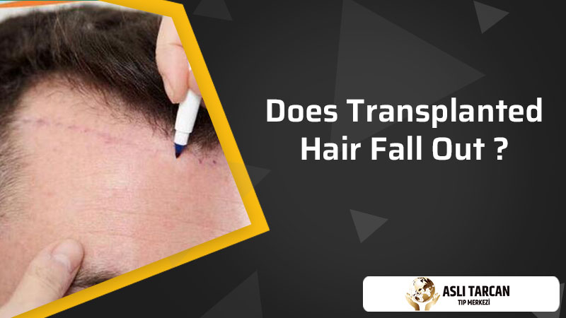 Does Transplanted Hair Fall Out