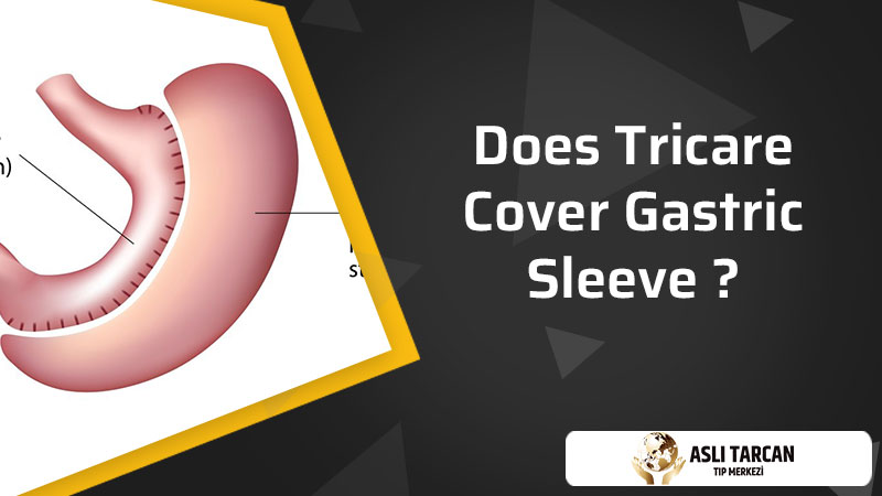 Does Tricare Cover Gastric Sleeve