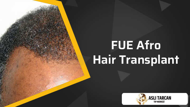 FUE Afro Hair Transplant
