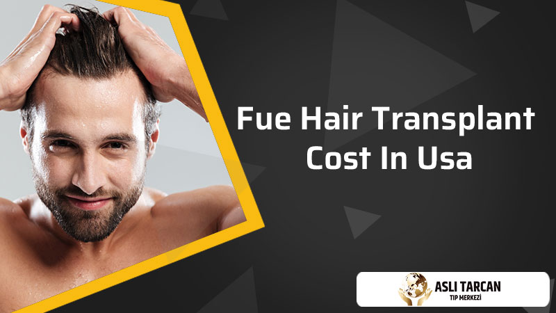 FUE Hair Transplant Cost In USA