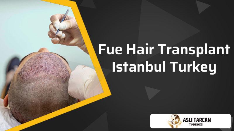 FUE hair transplantation in Istanbul Turkey