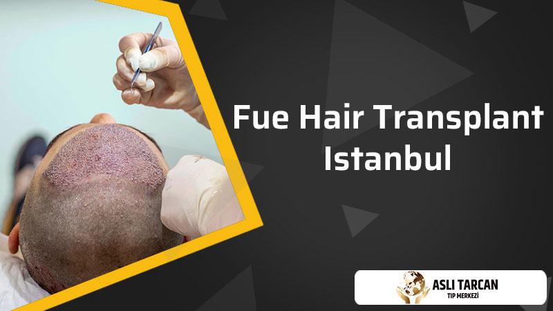 Fue Hair Transplant Istanbul