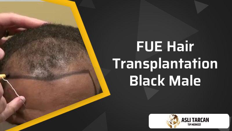 FUE hair transplantation black male