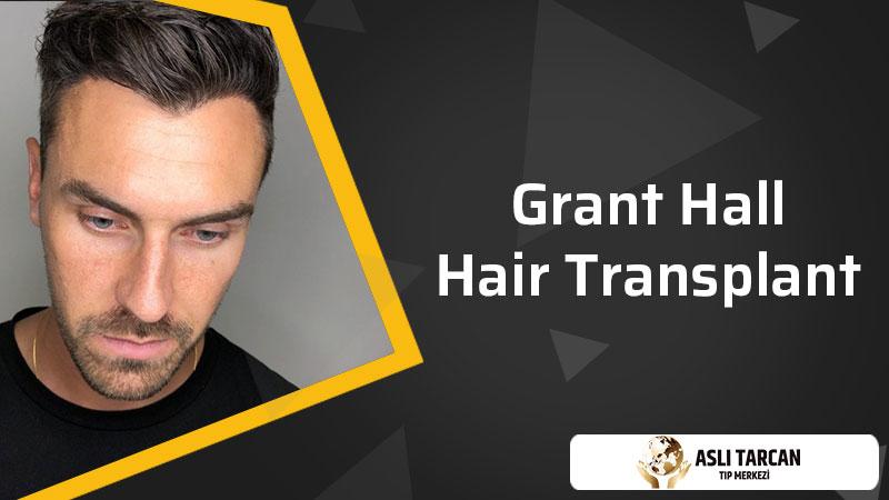 Grant Hall Hair Transplant